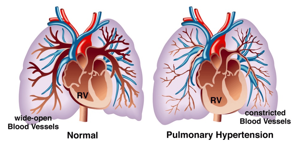 Pulmonary hypertension, left untreated, restricts blood flow to your lungs